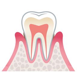 中程度の歯周病