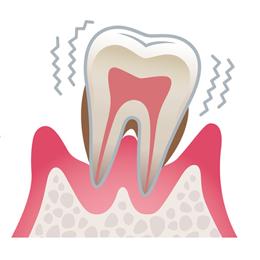 最終段階の歯周病